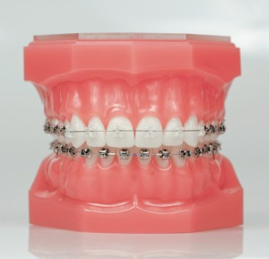 So im the mom with braces the happiest home if solutioingenieria Choice Image
